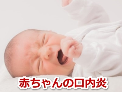 赤ちゃん 口内炎
